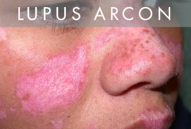 ízületi fájdalom és lupus erythematosus