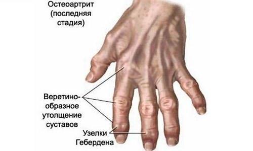 az ujj ízületének károsodása
