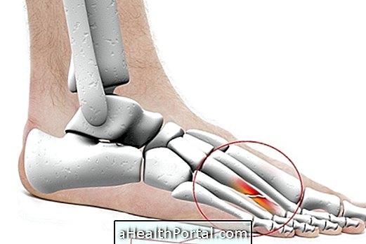 Fájdalom a láb metatarsalis részében