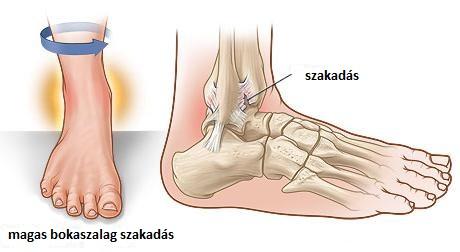 boka sérülések típusai)