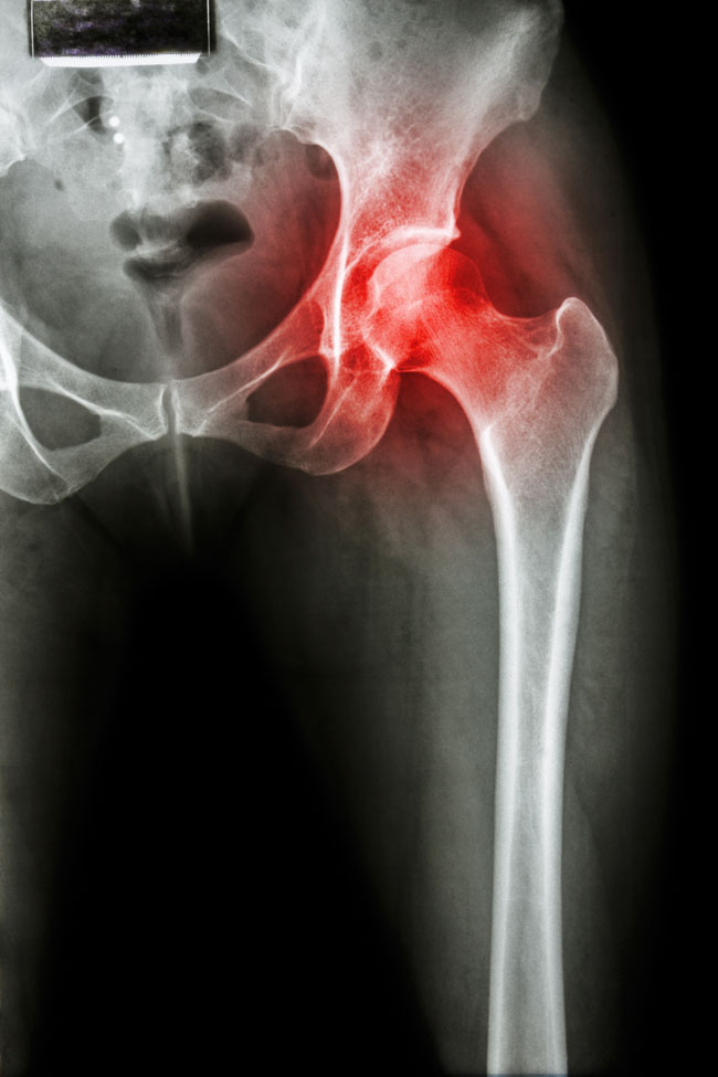 térd- és csípőízületek fájdalma