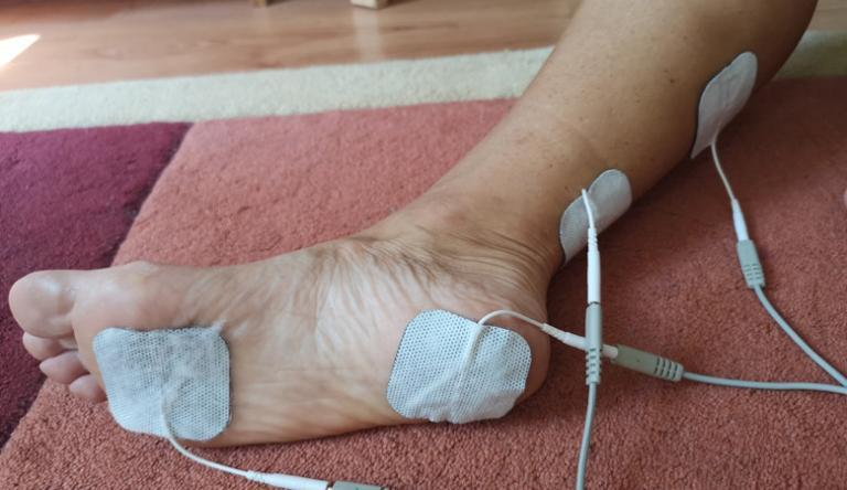 A térdízület 1. fokú deformáló artrózisa - Osteoarthritis 2 fokos a láb