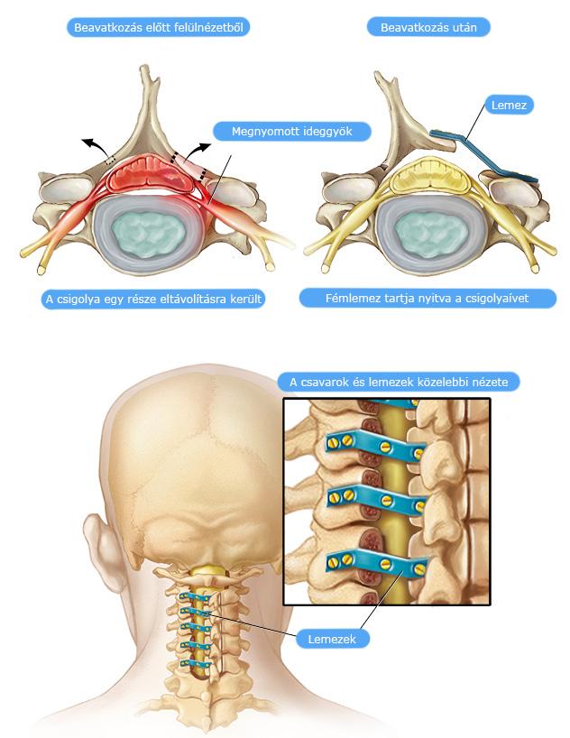 a nyaki gerinc artrózisa c5-c6 kezelés