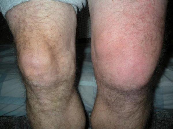 együttes kezelés magnéziával a térd artrózisának fórumkezelése