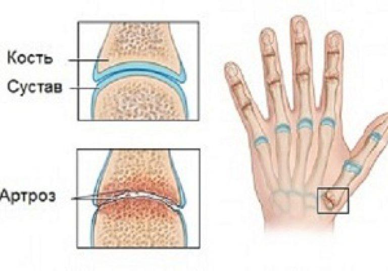 fájdalom a kéz kis ujjainak ízületeiben)