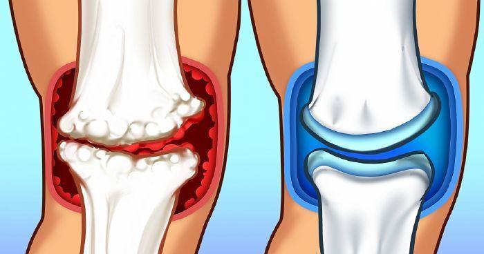 15 étel ízületi fájdalom ellen, amivel kezelheted a gyulladást