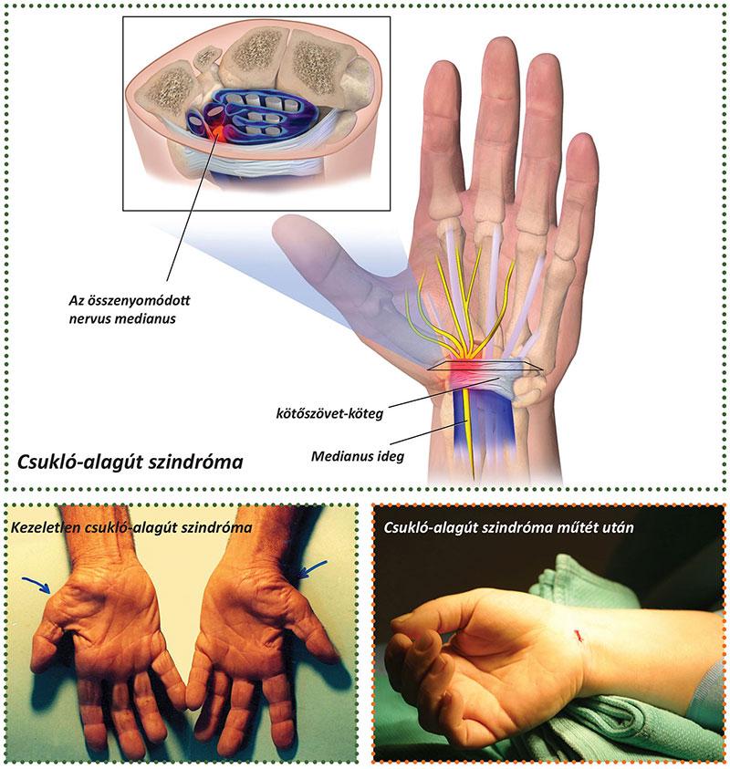 Kéztorna, kéz sérülés utáni rehabilitáció - Terápiás gyakorlatok a kézízületek fájdalmára
