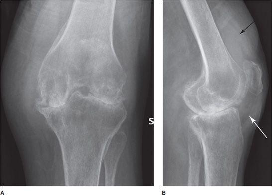+ Stroke - radiology ideas | anatómia, radiológia, agyidegek