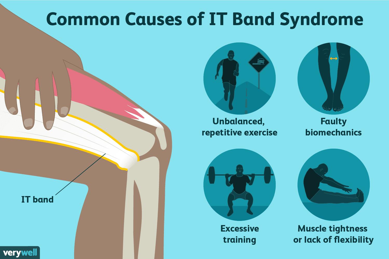 iliotibial band syndrome treatment)