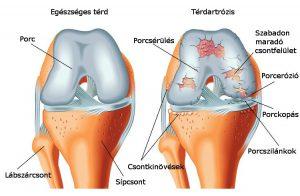 arthrosis kezelés dimexidum vélemények)