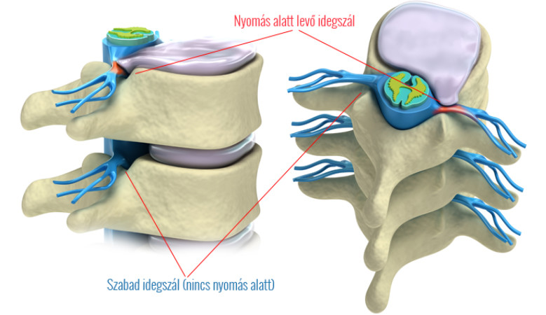 a vállízület szokásos elmozdulása sérülés térdfájdalom fertőzést okoz