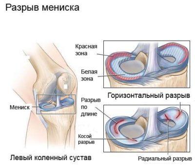 deformáló térd artrózis mi ez)