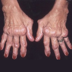 csípőízületi kezelés 3 fokban