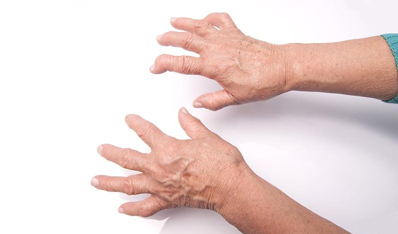 az ujjak és a lábujjak ízületeinek gyulladása)