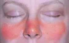 lupus ízületi betegség