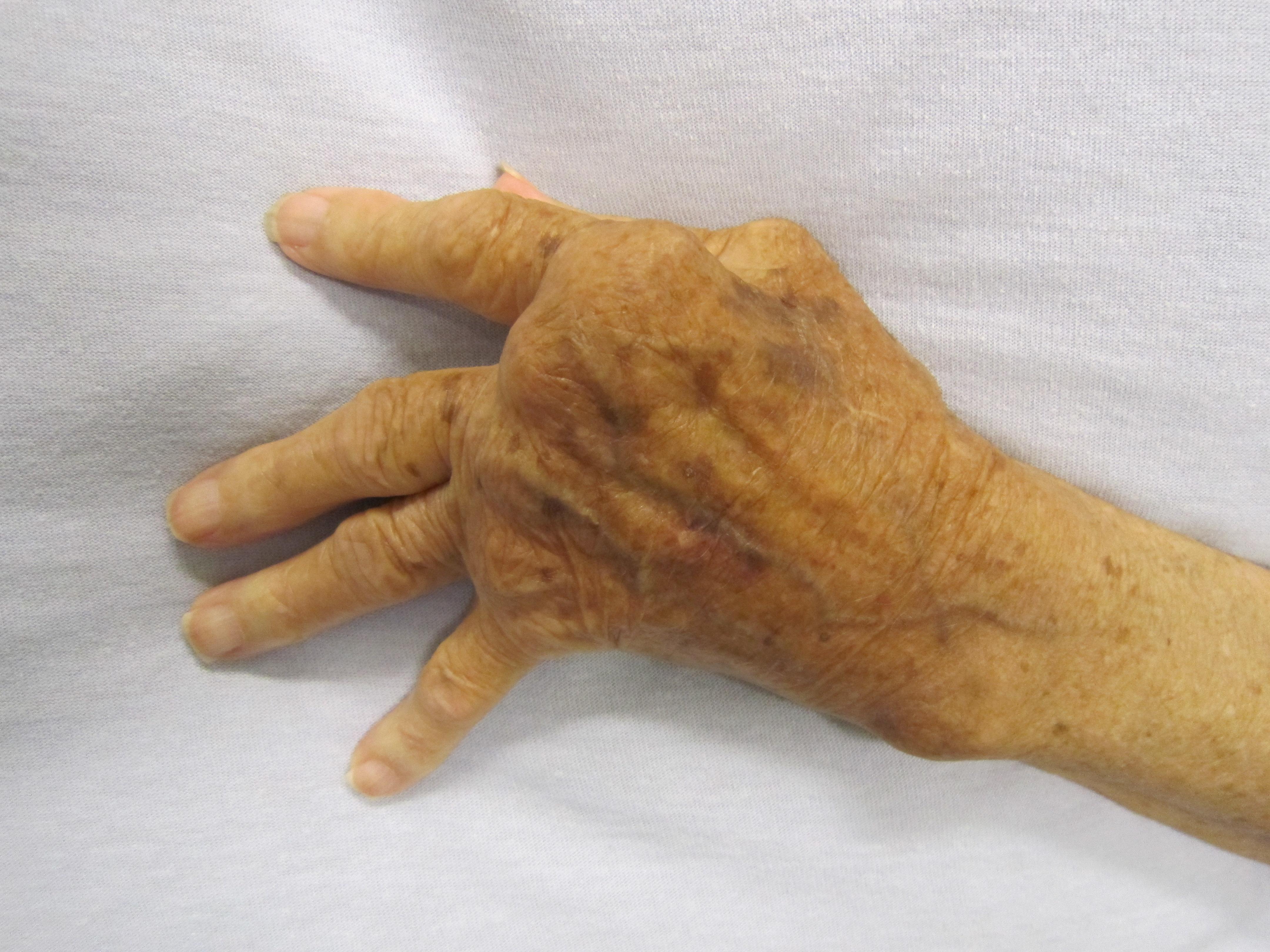 mely ízületeket érinti a rheumatoid arthritis)