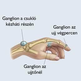a kéz arthrosisának kezelése sokkhullám-kezeléssel)