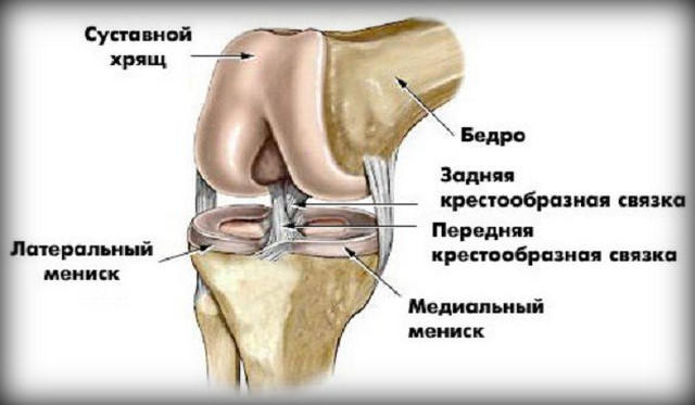 melynek eredményeként a térdízület artrózisa alakul ki)