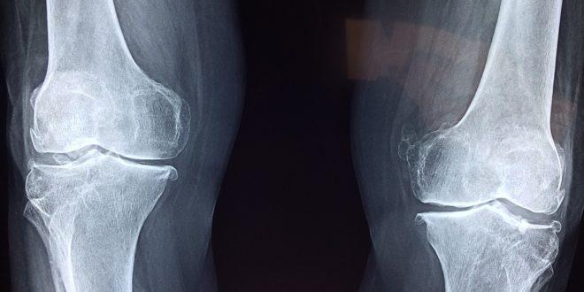 arthritis és arthrosis orvoslás ízületek kezelése tűk főzetével