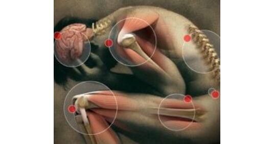 ízületi deformáció osteochondrosisban fájdalom a láb ízületeiben, mint hogy kezeljék