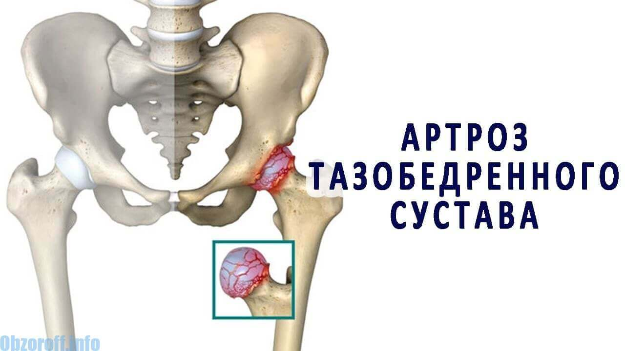ízületek artrózis kezelésére szolgáló módszerek)