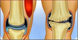 artrózisos gyógymód arthrosis rizsgombakezelés