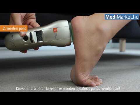 fájó és kattanó lábízület