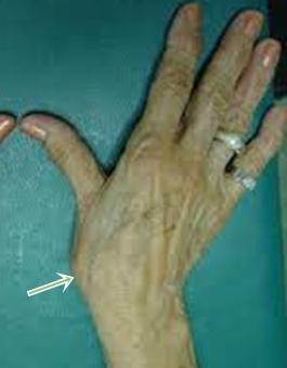 a hüvelykujj kezelés riasarthrosis artrózisa)
