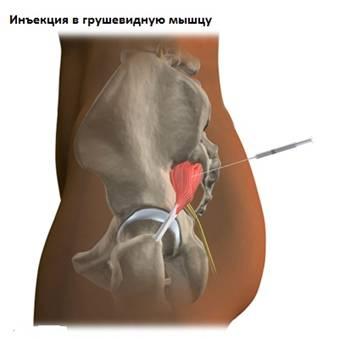 Az állandó lábfájdalom oka - HáziPatika