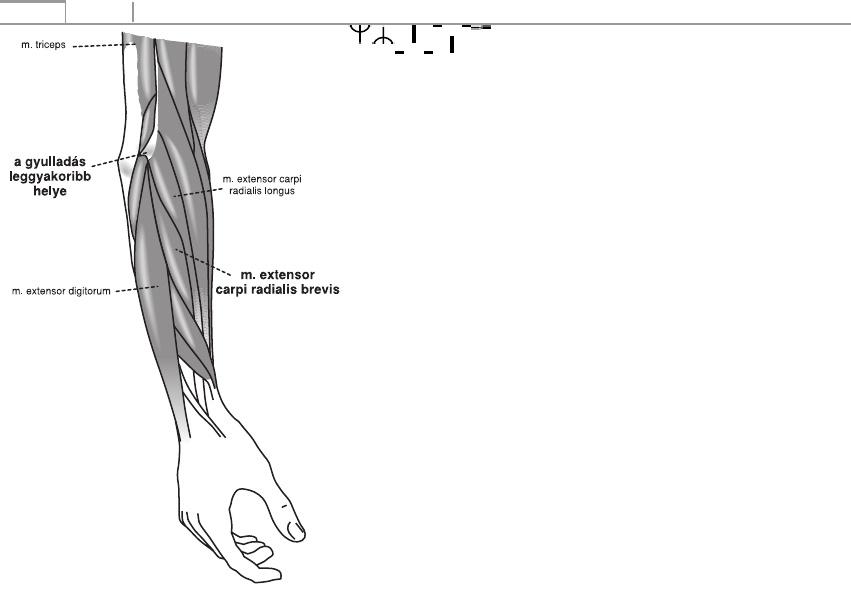 hogyan kezeljük ulnaris artrózist