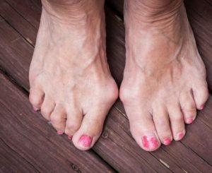 hogyan lehet kezelni a lábujj egy ízületét)