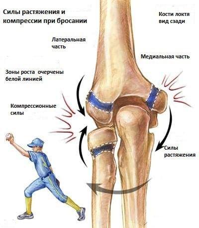 a könyökízület fájdalma és bőrpírja)