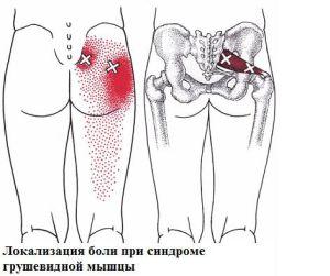 fájdalom a fenékben és a comb ízületeiben