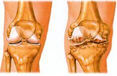 gyűjtemény artrózis kezelésére milyen kenőcs enyhíti a térdízület duzzanatát