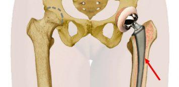 csípőizületi kopás tünetei