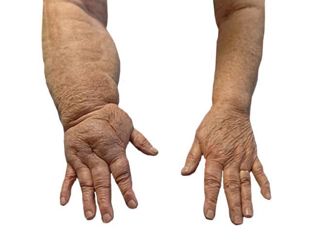 ízületi fájdalom és duzzadt ujjak