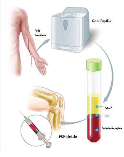 vállízületi kezelés zselatinnal