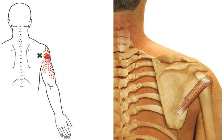 ágyéki fájdalom férfiaknál jobb oldali ízületi betegség tavaszi súlyosbodása
