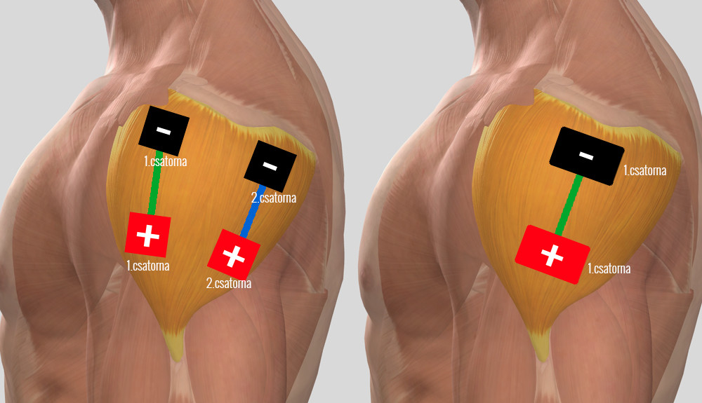 vállízület előkészületek téves ízület boka kezelés