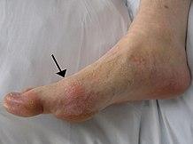 Bokagyulladás gombás ízületi gyulladás. Az ízületi gyulladás okai