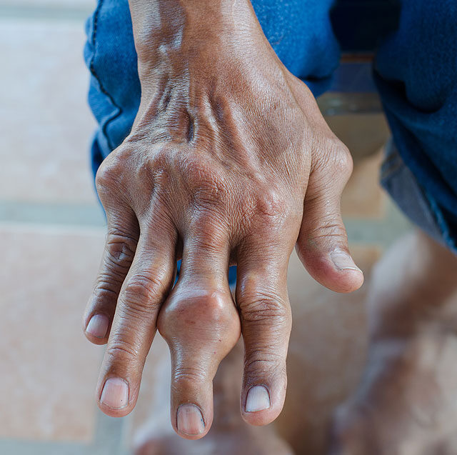 a középső láb ízületei ízületi gyulladása