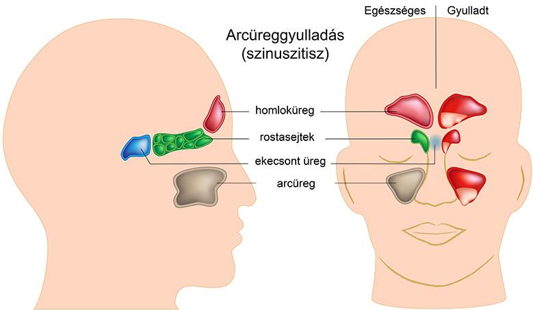 arcgyulladás jelei