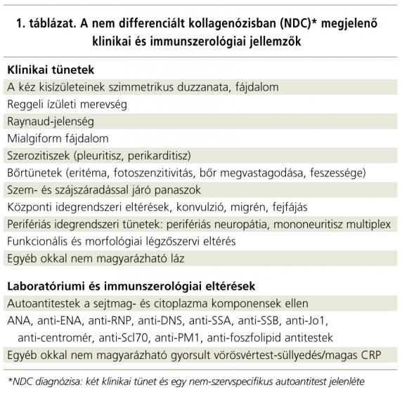 ízületi és kötőszöveti betegségek tünetei