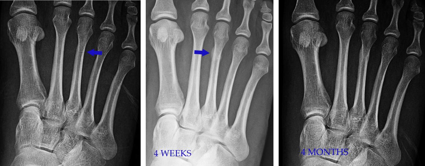 metatarsalis arthrosis és kezelés