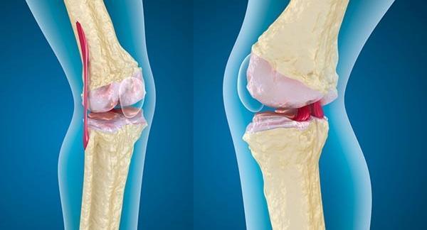 mi a különbség a térdízület és az ízületi gyulladás között kezelés, amikor az ízületek fájnak