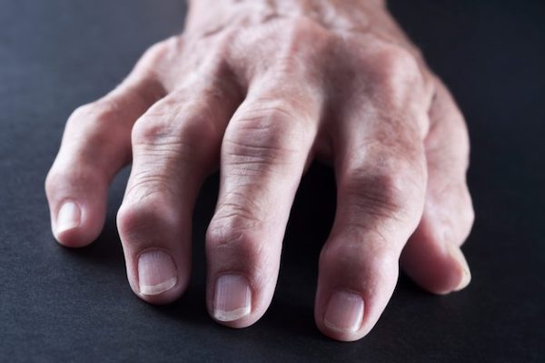 rheumatoid arthritis kéz tünetek kezelése)