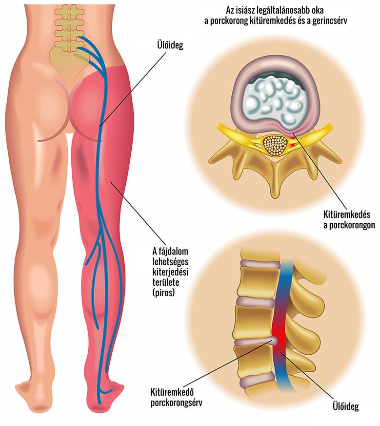 fájdalom bal csípőízület ágyék