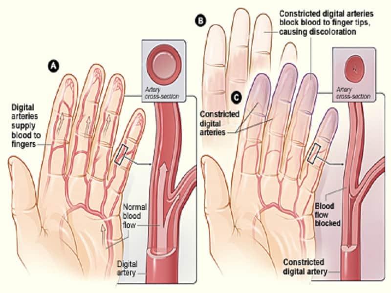 ízületi fájdalom az orvos lába)