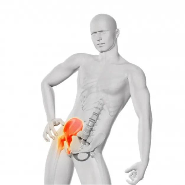 csípőízület kezelésében fellépő osteochondrosis fájdalom