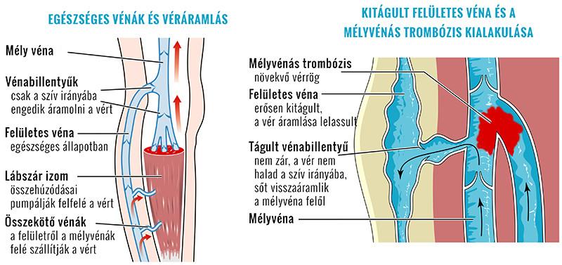 térdfájdalom nem hajlítja a kezelést ízületi és borjúfájás reggel